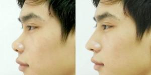 Trước và sau khi làm phẫu thuật nâng mũi hàn