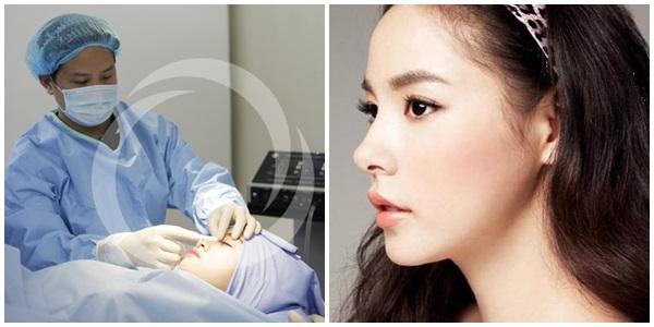 Nâng mũi bọc sụn công nghệ Hàn Quốc mang lại chiếc mũi thon gọn, thanh tú