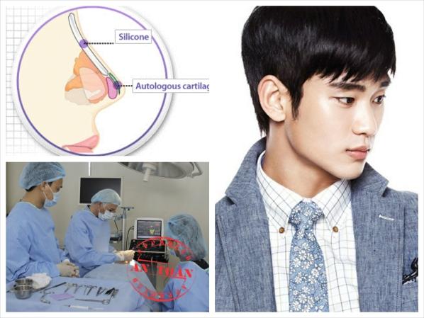 nâng ngực Hàn Quốc an toàn, hiệu quả cho nam giới