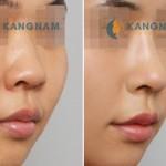 Nâng mũi có đau không, biến chứng gì không? – Bác sỹ tư vấn