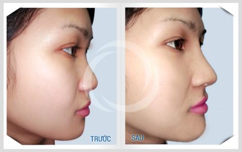 Tìm hiểu ưu nhược điểm khi nâng mũi không phẫu thuật Radies