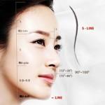 Nâng mũi S-line là gì?
