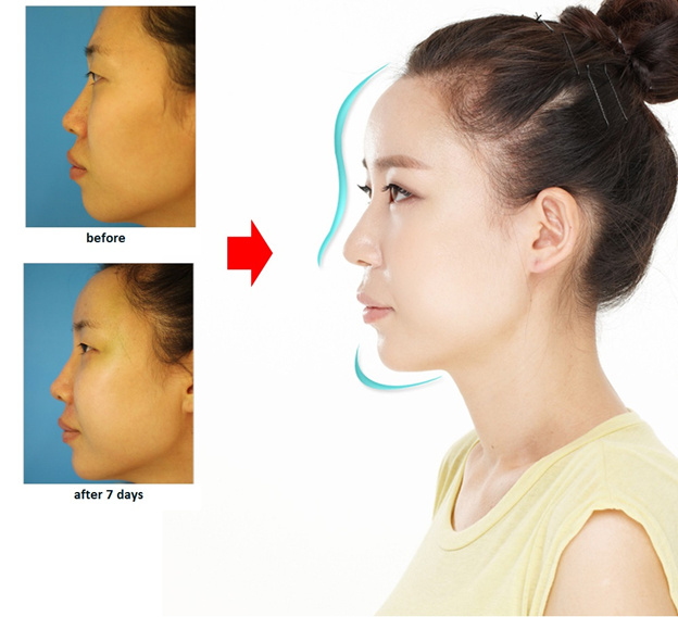 Nâng mũi S line là phương pháp thẩm mỹ mũi đảm bảo an toàn