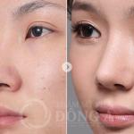 Nâng mũi sụn tự thân tạo dáng mũi S line thanh tú