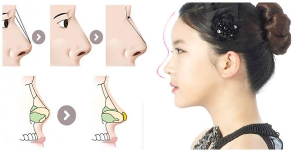 Sụn tự thân trong nâng mũi tạo hình S-line giúp duy trì dáng mũi vĩnh viễn