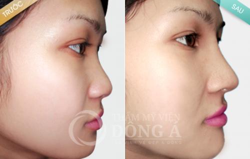 Tại sao cần đảm bảo nâng mũi uy tín khi phẫu thuật?