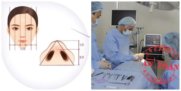 Phẫu thuật cắt cánh mũi được các bác sĩ tiến hành an toàn