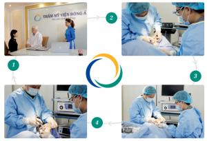 Quy trình phẫu thuật gọt mặt Hàn Quốc