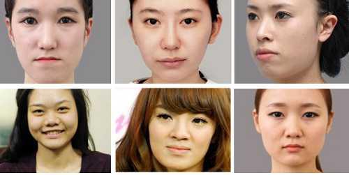 Phẫu thuật thẩm mỹ khuôn mặt v line