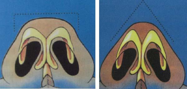 Phẫu thuật thu gọn cánh mũi và đầu mũi nội soi không gây đau đớn 1