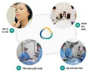 Quy trình phẫu thuật gọt mặt V line? Chi phí gọt mặt V line bao nhiêu tiền?