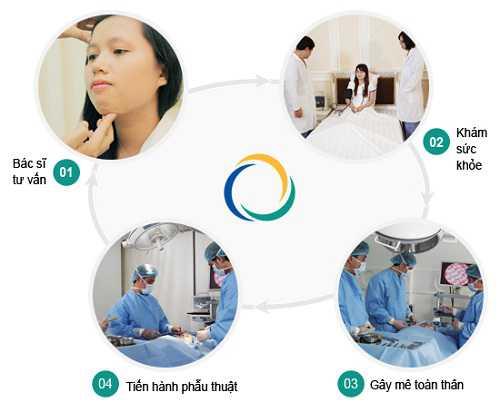 Quy trình phẫu thuật gọt mặt thẩm mỹ