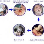 Tìm hiểu quy trình thu gọn cánh mũi đạt chuẩn được bộ y tế cấp phép