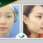 Cùng khách hàng đến tái khám sau thẩm mỹ nâng mũi Sline Dr Park