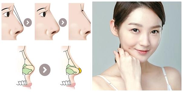 Mũi đẹp hơn nhờ nâng mũi tạo hình s line