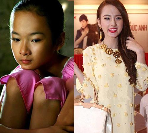 """""""Soi"""" hình ảnh Phương Trinh sửa mũi: Trước và sau 2"""