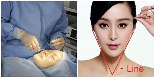 Phẫu thuật thẩm mỹ gọt mặt bằng công nghệ nội soi