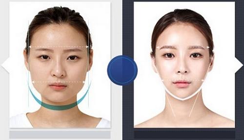 Kết quả đạt được sau khi thẩm mỹ khuôn mặt V-line