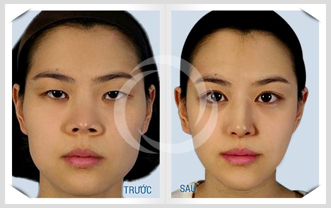 Hình ảnh trước và sau khi thu gọn mũi bằng công nghệ Hàn Quốc