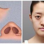 Thu gọn cánh mũi không cần phẫu thuật tại TMV Đông Á