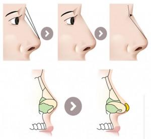 Trọn bộ nhất về phẫu thuật nâng mũi